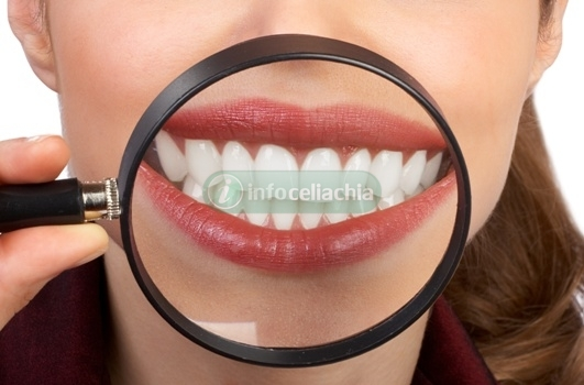 I celiaci hanno più problemi di salute orale