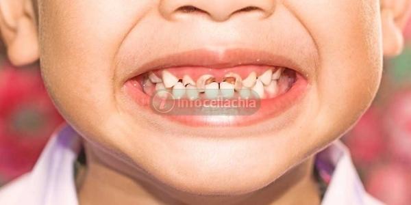 Più problemi ai denti nei bimbi affetti da celiachia